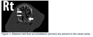 CT scan nose